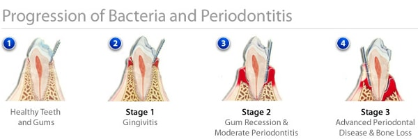 instructions after tooth extraction and bone graft